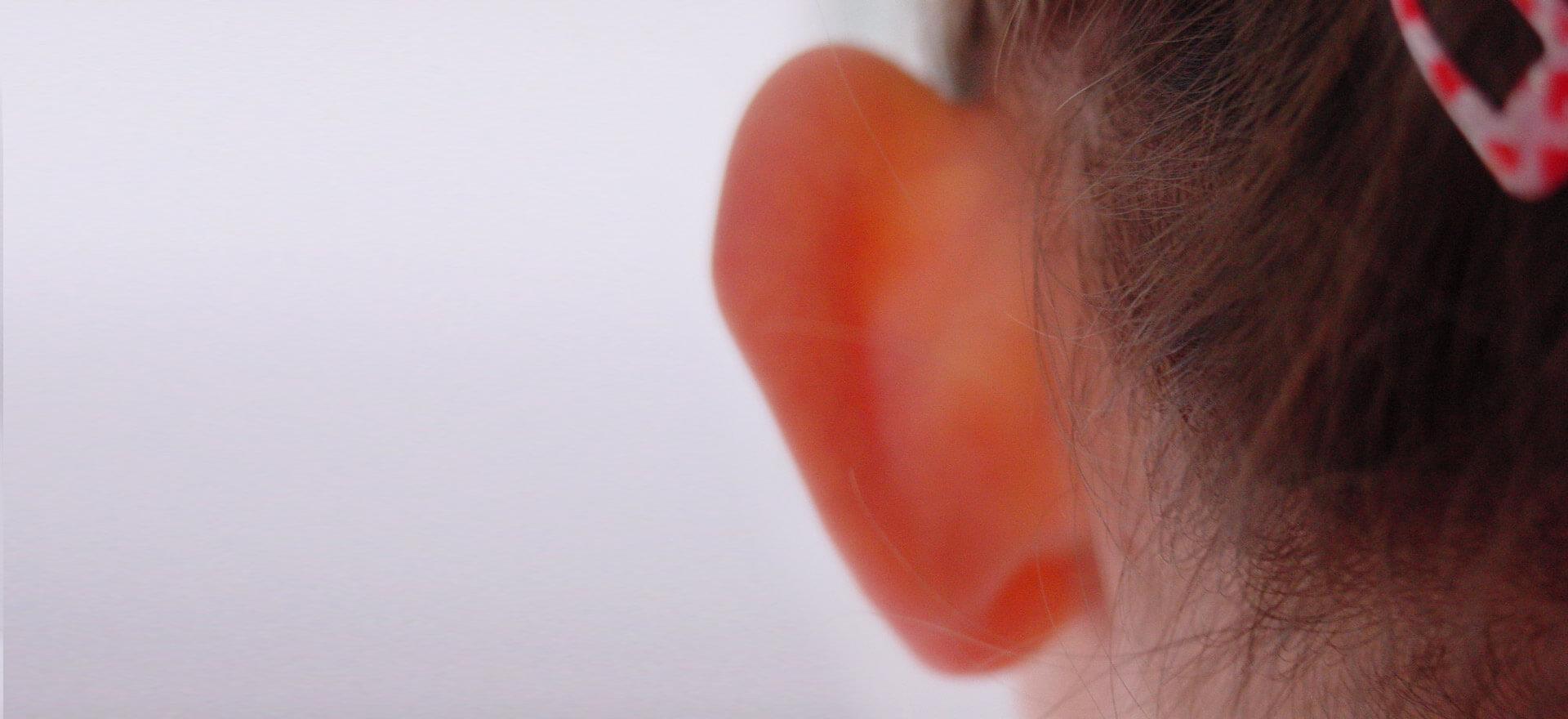 Mädchen mit abstehenden Ohren wurde im Belleza-Zentrum in Berlin behandelt.