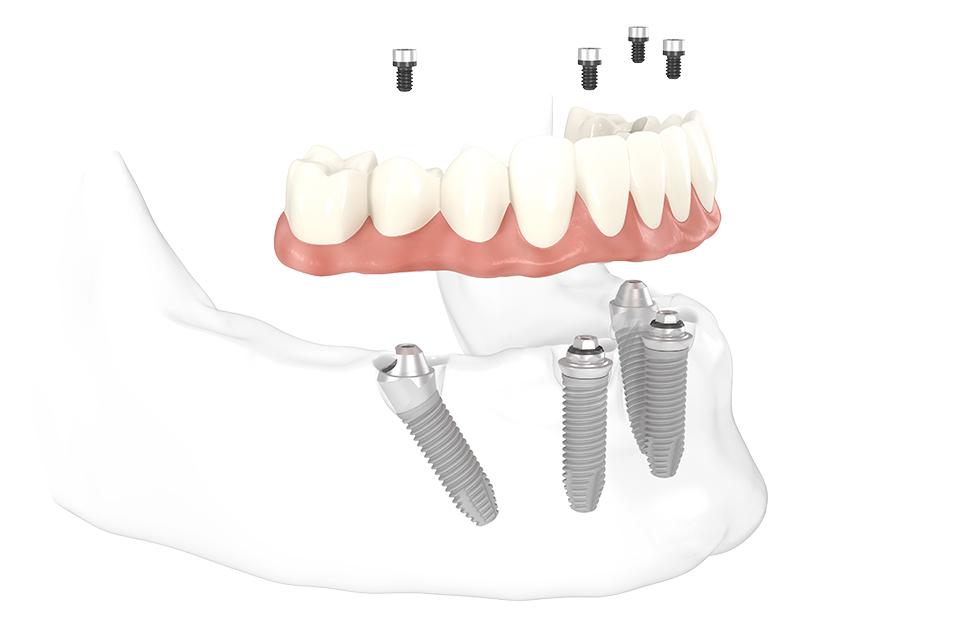Bei feste Zähne mit All-on-4 in Berlin reichen 4 Implantate für festen Halt des Zahnersatzes.