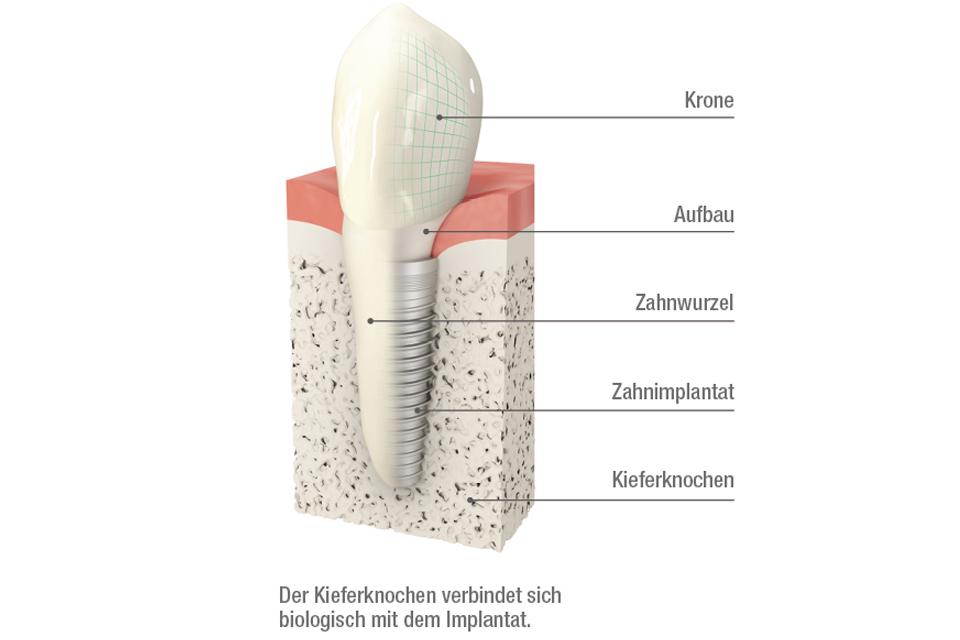 Aufbau eines Zahnimplantats in Berlin.